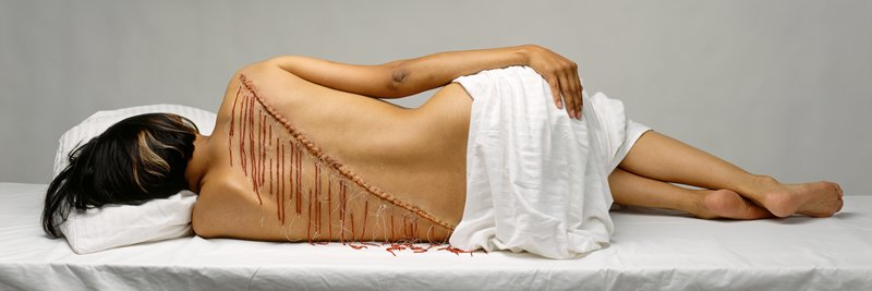 light box with back of woman lying down; diagonal scar with fringe down her back