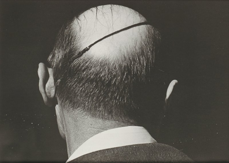 back of head of balding man with a diagonal elastic band around his head (eyepatch?); man wears a white collared shirt; dark ground
