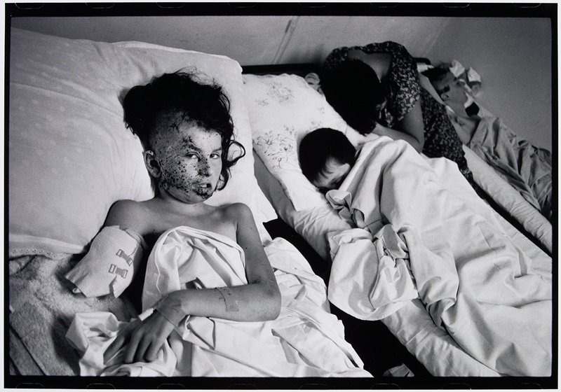 boy with amputated right arm and scabbed face lying in bed